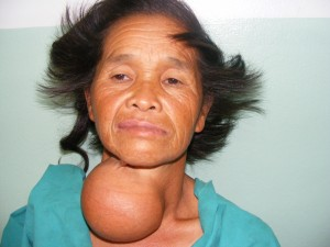 Thyroid Patient