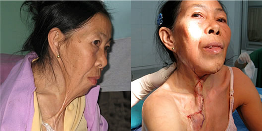 Burn contracture before and after surgery