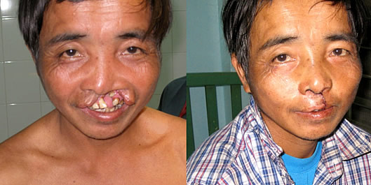 Cleft lip/palate before and after surgery